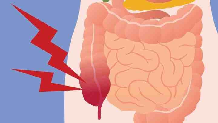 9 remèdes naturel pour les gaz intestinaux a la maison