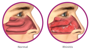 chronic runny nose treatment in Auburn and Federal Way, WA