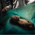 """""""Final Farewell"""" di Alain Schroeder, il corpo senza vita di un cuccio d'orango sul telo di un chirurgo"""