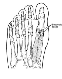 Sesamoids in the foot