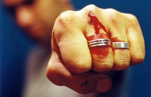 Scandal în Comlăușa. Tânăr desfigurat de un consătean