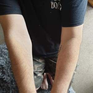 Arm won't straighten due to arthritis