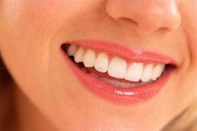 Inilah Cara Ampuh Memutihkan Gigi Secara Alami