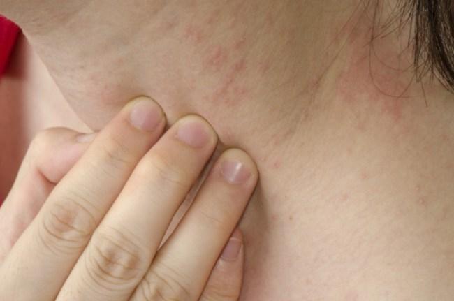 jenis penyakit kulit campak