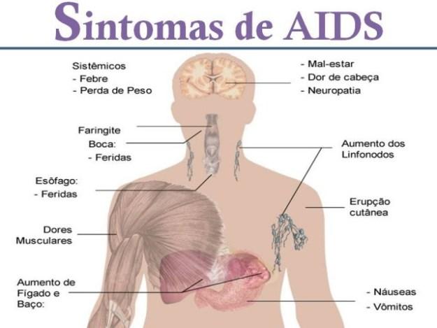sintomas-da-aids-3