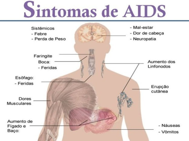 aftas fase aguda hiv