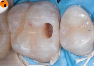 frisch getunnelter Zahn