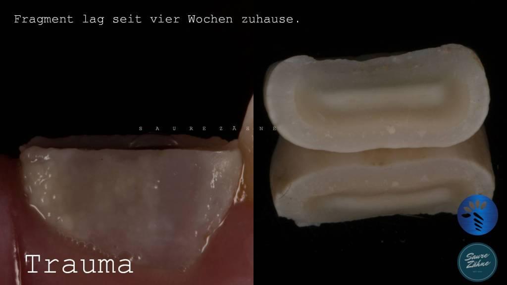 Trauma und Zahnfragment