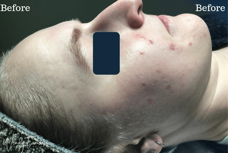 hormonal acne olympia