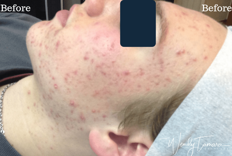 male hormonal acne olympia