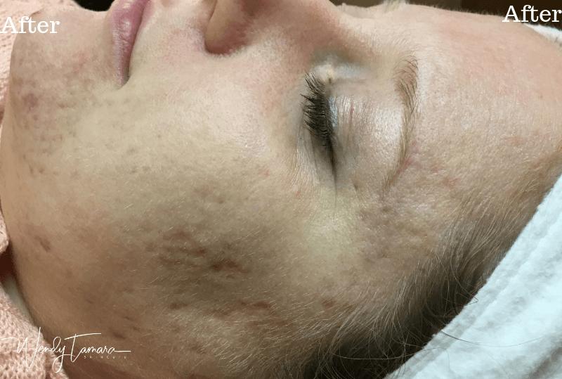 acne scars olympia