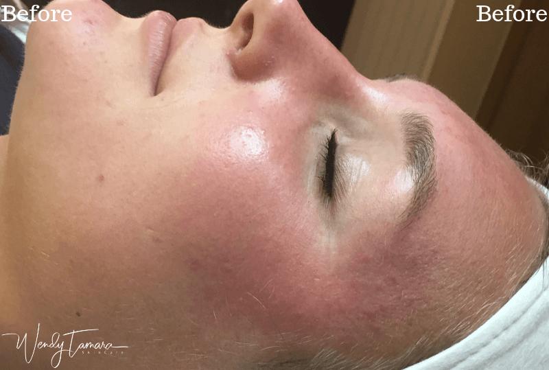 inflamed skin