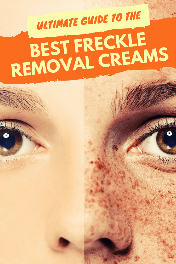 Face Fresh Cream Freckles