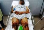 Một người Canada gốc Việt về Việt Nam ăn Tết bị tạt axit và cắt gân chân