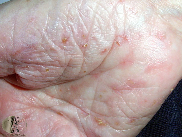 what does scabies look like?