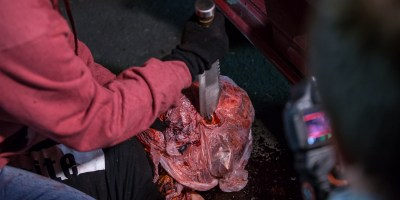 Volumes of Blood Production Photo (2)