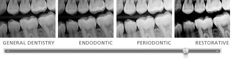 Presets for general dentistry, endodontics, periodontics or restorative dentistry