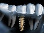 Dr. Schlotmann - Implantologie