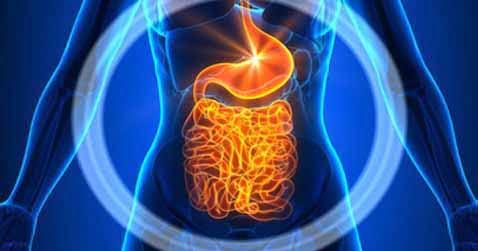Endometriose Darm