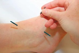 Akupunktur Fuß