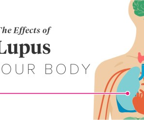 The Effects of Lupus on the Body