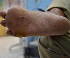 What Is Diabetic Neuropathy? Key Facts to Know