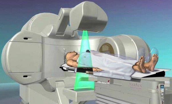 Terapia de radiação