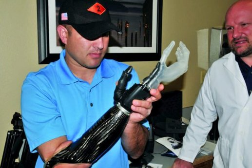 Eletrodos cerebrais do braço protético