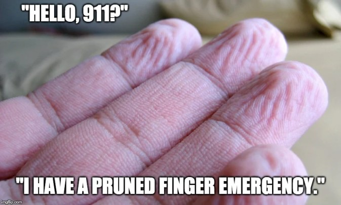 eu tenho um meme de emergência de dedo podado