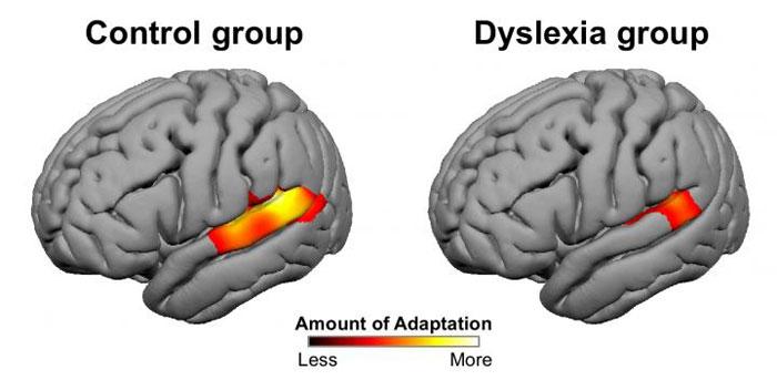 9867322346-dyslexia-3