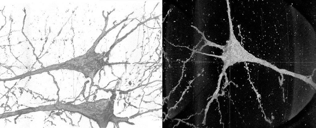 Powerful X-rays reveal unique differences in neurons from people with schizophrenia
