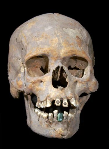 Body Exhumed After 30 Years