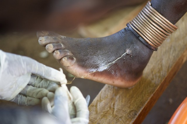 3. extracting a guinea worm
