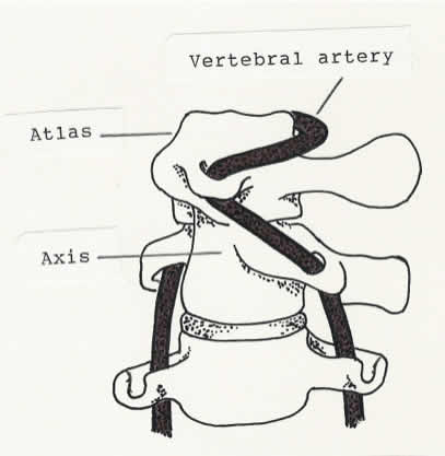 Extreme rotation of the atlas on the axis (at the atlantoaxial joint) stretches the vertebral artery.  In layman's terms, 40% of a hanging.