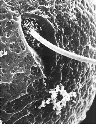 Fertilized cell