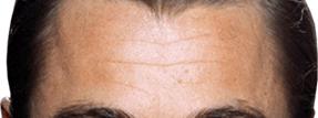 forehead