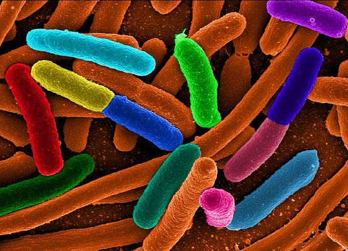 This image shows a microscopic view of E. coli (Escherichia coli) bacteria that is enhanced with color.