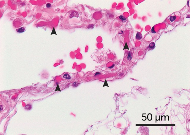 COVID-19 lung tissue sample