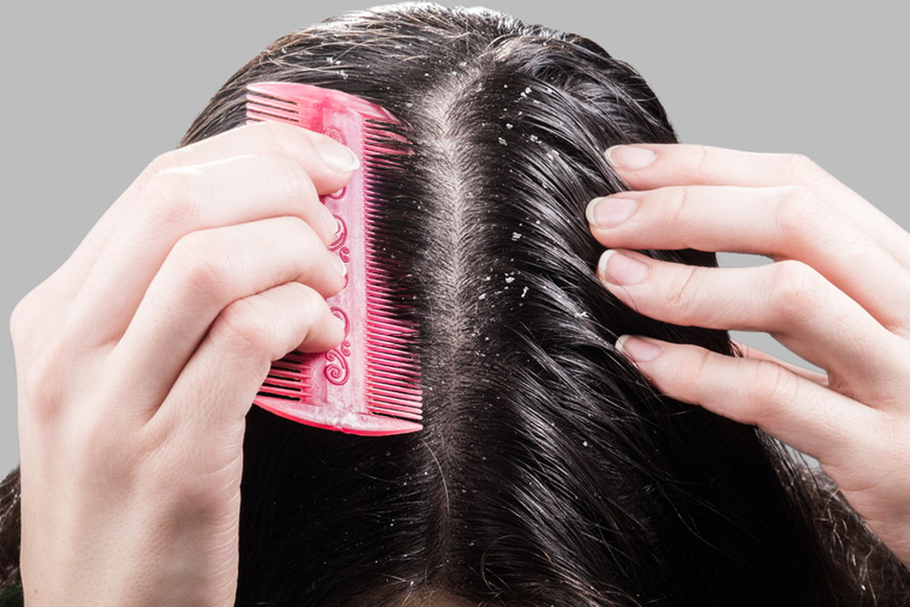 Removing Hair Dandruff Using Comb