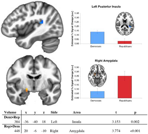 Verschil van activiteit in amygdala en insula. Afbeelding: Schreiber D, Fonzo G, Simmons AN, Dawes CT, Flagan T, et al. (2013) Red Brain, Blue Brain: Evaluative Processes Differ in Democrats and Republicans. PLoS ONE 8(2): e52970. doi:10.1371/journal.pone.0052970