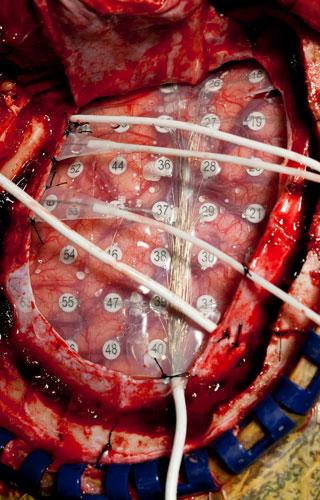 Foto: Department of Neurosurgery, University of Utah.