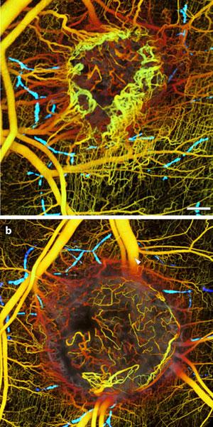 Een tumor voor (boven) en vijf dagen (onder) na een behandeling die erop gericht is om de groei van bloedvaten af te remmen. De onderzoekers noemen de beelden 'verbazingwekkend'. Afbeelding: Nature Medicine.