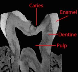 Zo ziet de tand er van de zijkant uit. Er is duidelijk sprake van tandbederf.