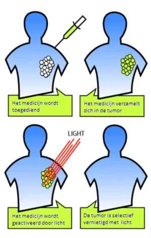 De behandeling met lichtgevoelige nanobodies. Na toediening van het medicijn in het bloed (links-boven), verzamelt het medicijn zich in de tumor(rechts-boven. Licht van buitenaf activeert het medicijn (links-onder), het medicijn laat de tumorcellen doodgaan, vervolgens zal de tumor verdwijnen (rechts-onder).Bron: Modern Cancer Hospital Guangzhou, China.