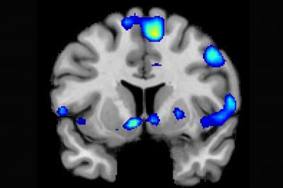 Verschillende hersengebieden worden actief wanneer gelovigen een spirituele ervaring hebben. Afbeelding: Jeffrey Anderson.