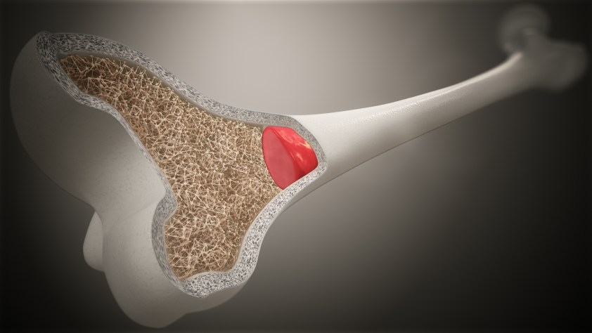 Functions and Conditions of Bone Marrow - Scientific ...