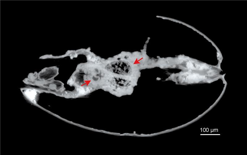 ostracod Harbinia micropapillosa tomography