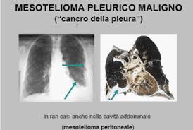 Nuova prospettiva nel mesotelioma pleurico maligno