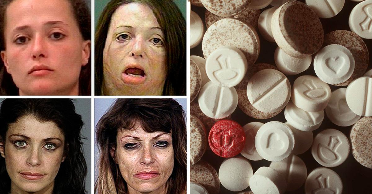 """""""Shaboo"""",la droga che deturpa : tanti effetti devastanti, ma pochi dati certi"""