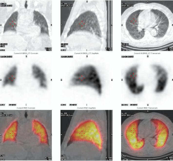 scintigraphie pulmonaire casamance